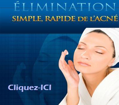 Comment se débarrasser de l'acné, remèdes naturels acné