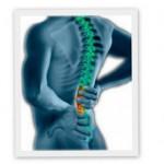 comment soigner sciatique et les douleurs cervicales