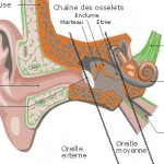 Acouphènes ou bourdonnements d'oreille